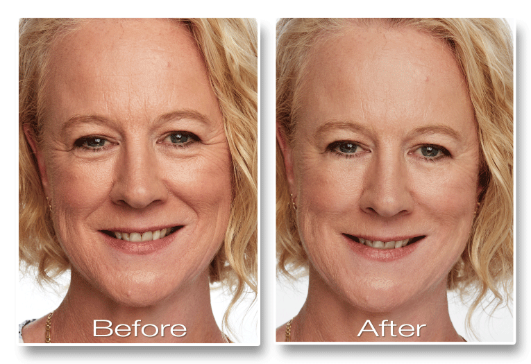 no-no-needles-before-and-after-jane-1
